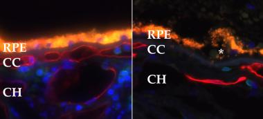 Labeling of healthy blood vessels (red) in a healthy eye (left) and an eye with geographic atrophy (right). Note the loss of choriocapillaris vessels (CC) in the eye with geographic atrophy.